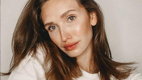 Ex-GNTM-Star Anna Wilken leidet an Edometriose.