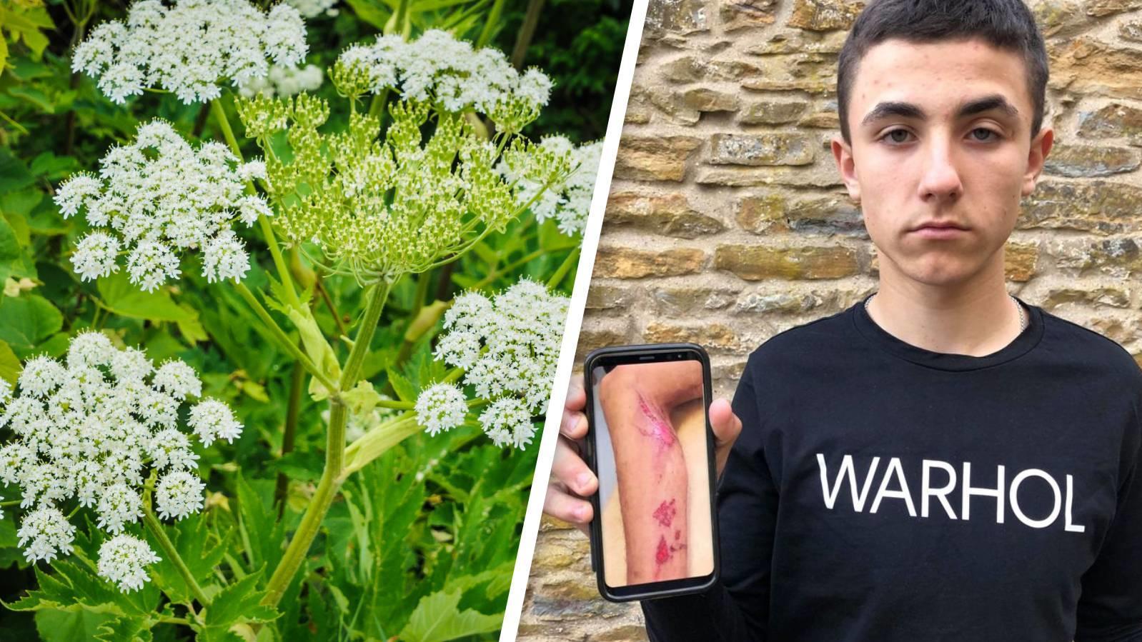 Der 16-jährige Alex erlitt durch den Kontakt mit Bärenklau schlimme Verbrennungen.