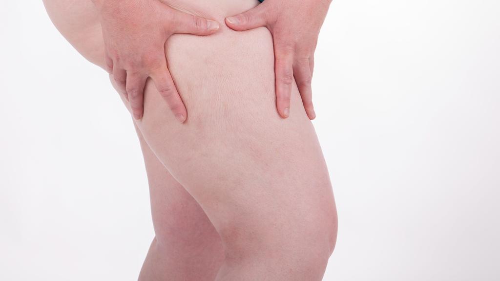 Eine dicke Frau betrachtet die Cellulite auf ihrem Oberschenkel.