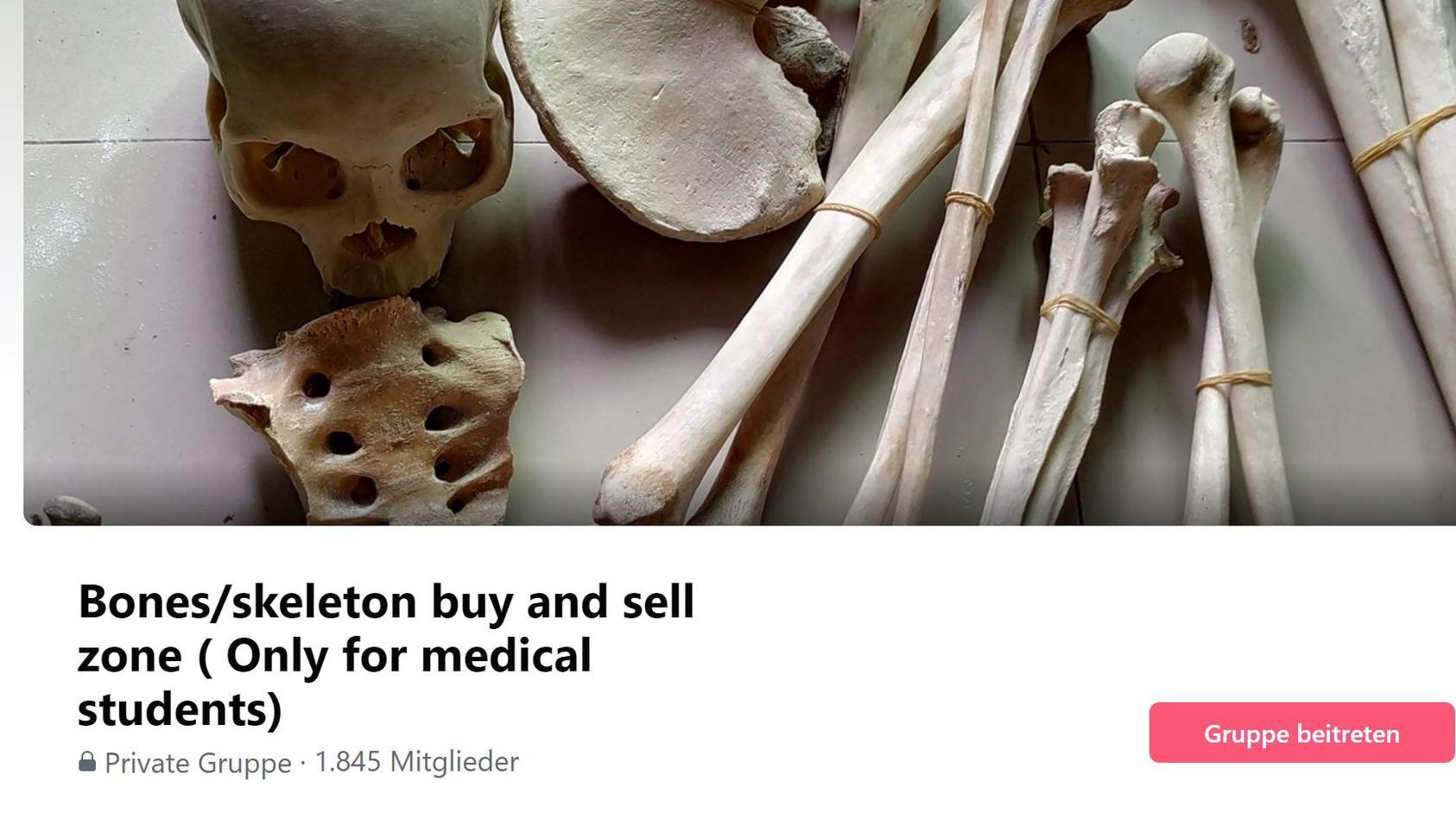 Auf Facebook gibt es Gruppen, in denen mit menschlichen Überresten gehandelt wird.