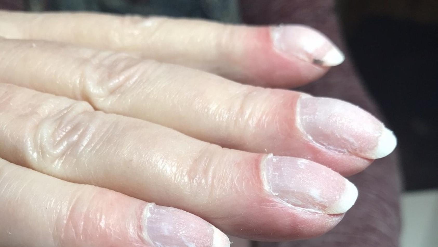 Die Fingernägel von Joan Martindale zeigten besorgniserregende Veränderungen.
