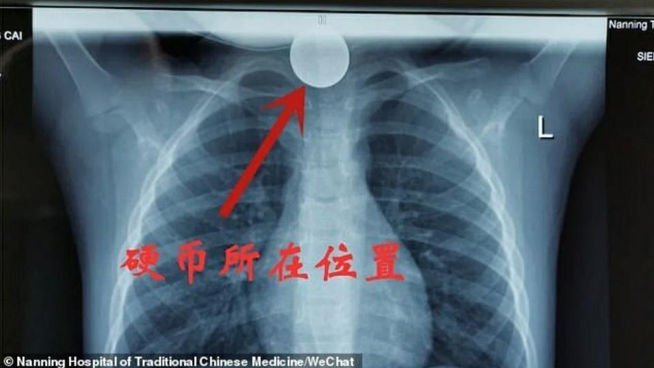 Das Röntgenbild zeigt, wo die Münze nach dem Verschlucken im Hals steckengeblieben ist.