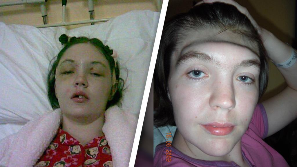 Gráinne  Kealy nach ihrem Unfall
