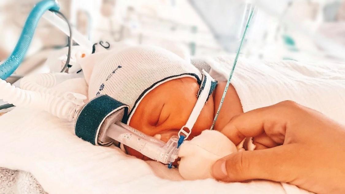 Baby Bruno kam mit Loch im Rücken zur Welt