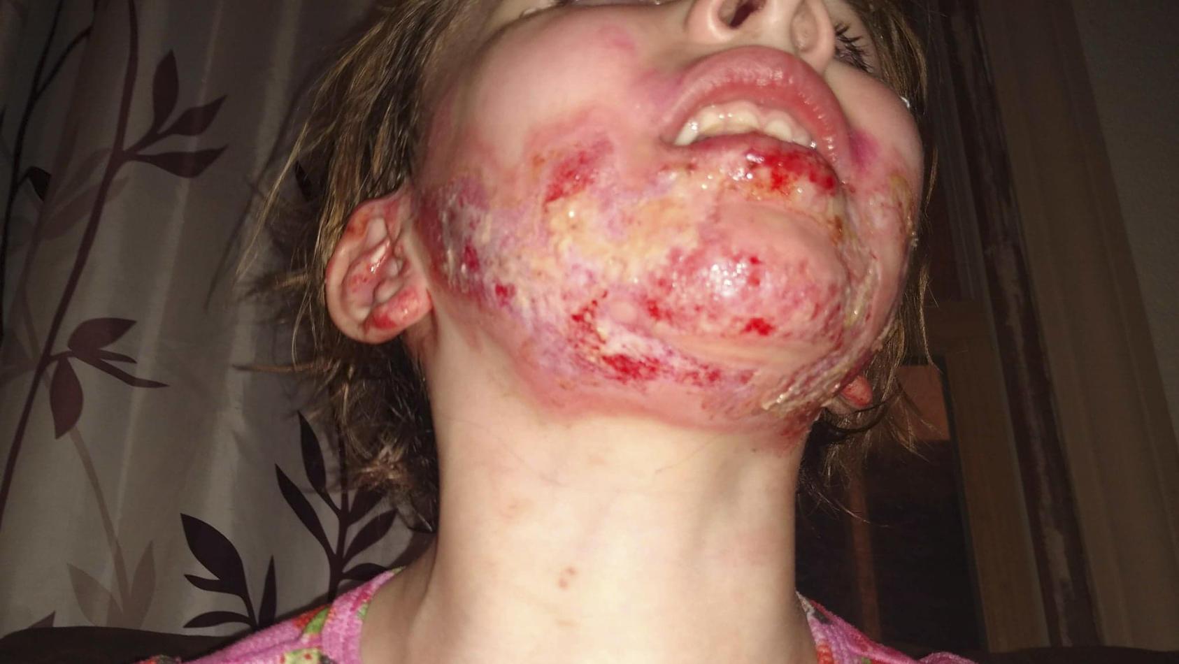 Izabella musste ins Krankenhaus. Danach musste die Wunde zweimal täglich gereinigt werden.