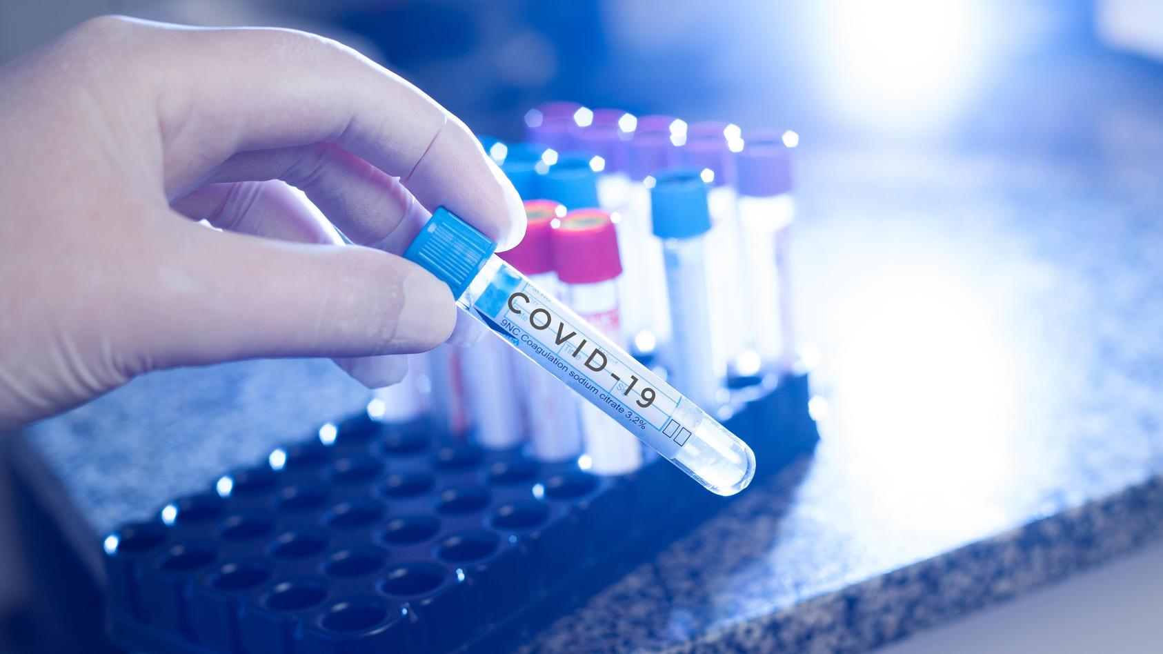Wissenschaftler fordern neue Strategie im Kampf gegen die Corona-Pandemie