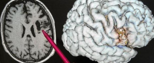 Enzephalopathien können unter anderem durch degenerative Veränderungen des Gehirns entstehen