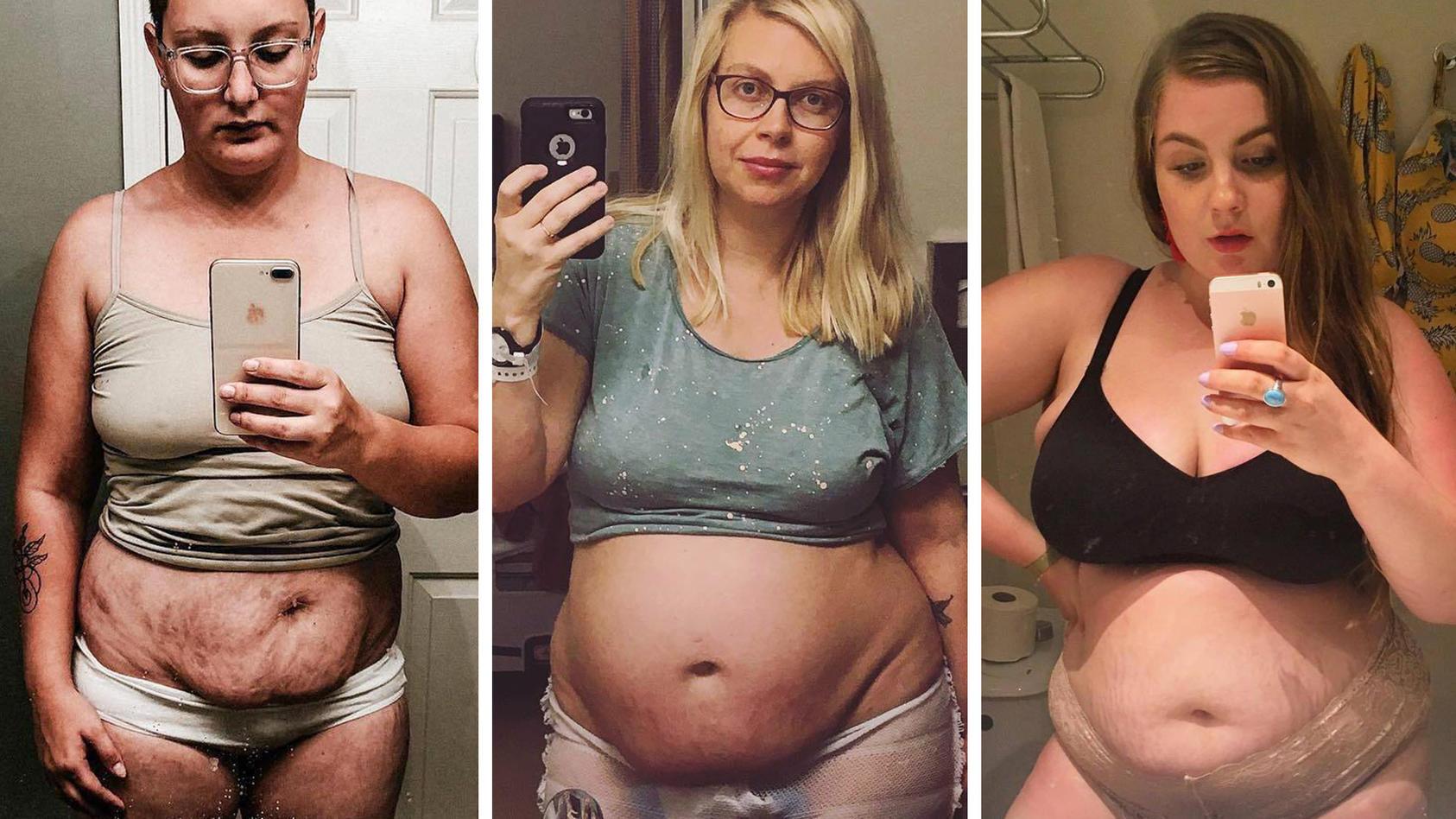 """Auf Instgram zeigen Mütter ihre """"echten"""" After-Babybäuche."""