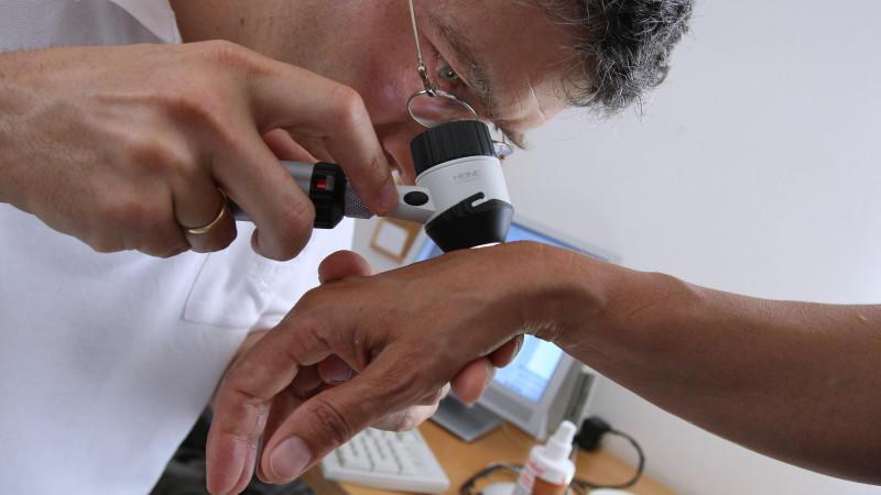 Die ABCDE-Regel kann helfen, Hautkrebs zu erkennen