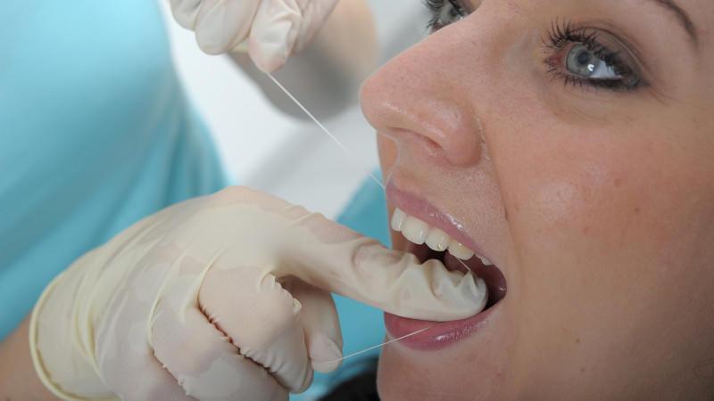 Zahnmedizinische Prophylaxe: Schutzmaßnahmen vor möglichen Erkrankungen der Zähne, des Zahnfleisches und des Kiefers