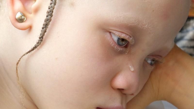 Dieses Mädchen leidet unter Albinismus, einer der häufigsten Erbkrankheiten.