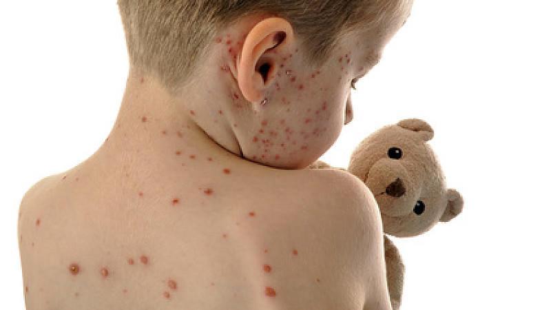 Exantheme beruhen meistens auf Infektionskrankheiten oder sind Ausdruck von Abwehrreaktionen gegen innere Vorgänge