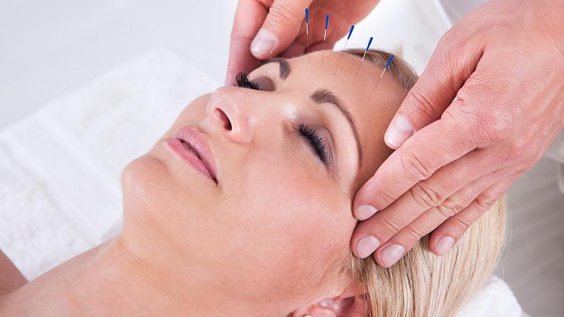 Akupuktur ist Teil der Traditionellen Chinesischen Medizin.