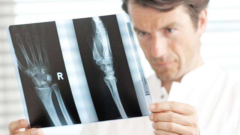 Ein Arzt betrachtet in einem Behandlungszimmer ein Röntgenbild.