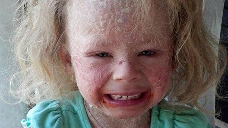 Die kleine Georgia (5) leidet an einer seltenen Hautkrankheit