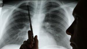 Die genau Ursache für Krebs wurde noch nicht gefunden, es gibt aber Risikofaktoren.