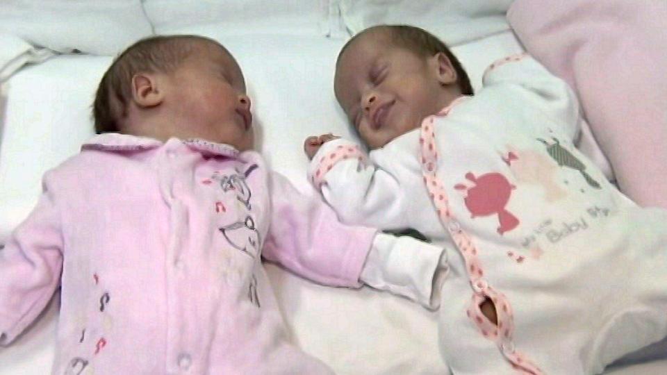 Frau nach Entbindung weiter schwanger: Zweiter Zwilling kam zwei Monate später!