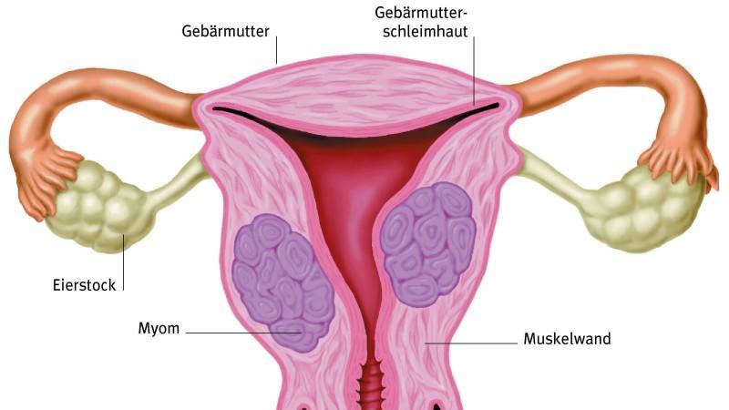 Am häufigsten sind Teratome bei Frauen im gebärfähigen Alter am Eierstock zu finden