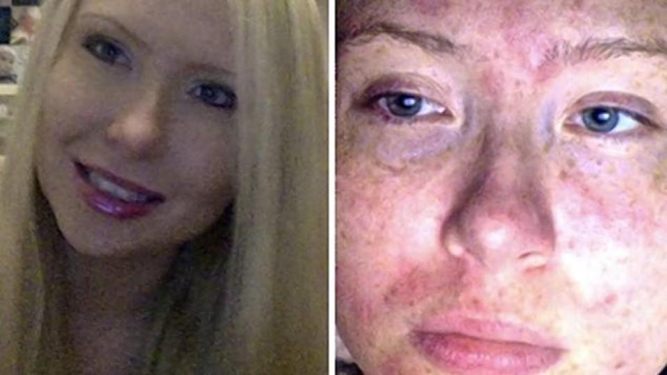 Links ist Julie zu sehen, als sie noch gesund war. Rechts leidet sie stark unter dem juckenden Ausschlag,