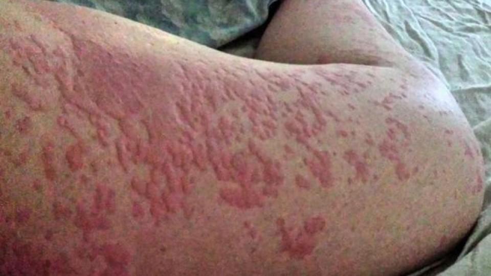 Juckender Ausschlag: Wenn der Körper allergisch auf Schweiß reagiert