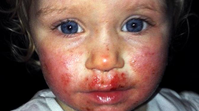 """""""Sienna wurde von ihrer Hautinfektion regelrecht aufgefressen"""", erinnert sich ihre Mutter."""