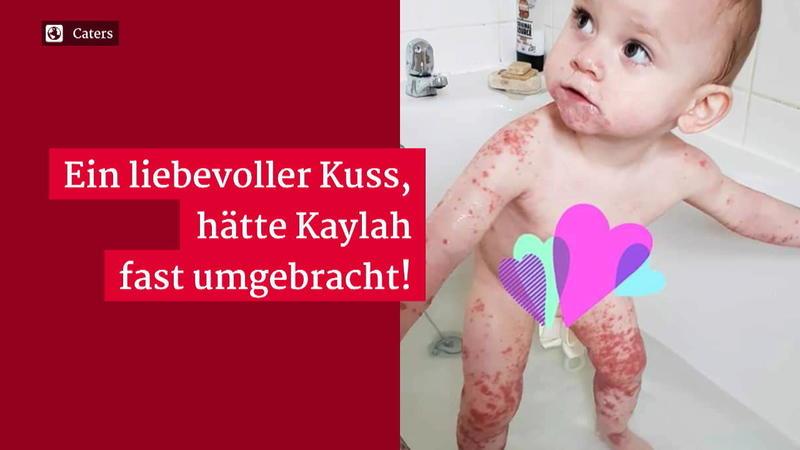 Kaylah (1) wäre fast an Herpes gestorben - weil sie auf